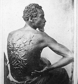 A slave with scars from being whipped