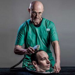 The World's First Human Head Transplant